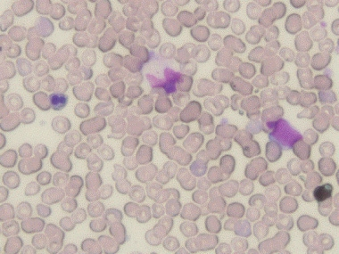 A dysplastic red blood cell with budding nuclei (l