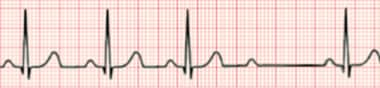 Second-degree Mobitz II atrioventricular block. No