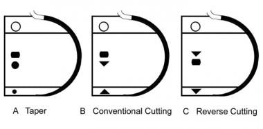 Materials for Wound Closure: Wound Healing and Closure, Suture