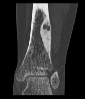 Coronal CT scan shows osteoid osteoma. Courtesy of
