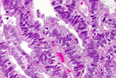 Elevated mitotic activity (defined as ≥2 mitoses p