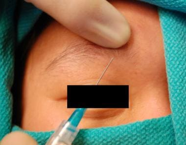 Demonstration of supratrochlear nerve injection