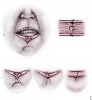 Steps to repair lip laceration. A 3-layered approa
