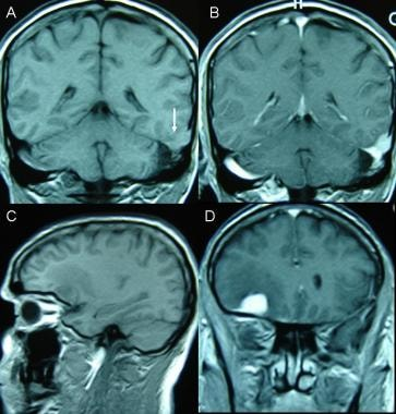 Malignant and multiple meningiomas. A 47-year-old