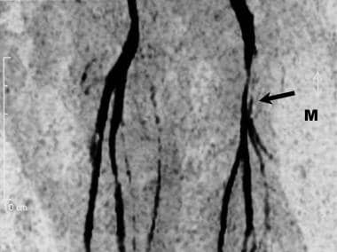 Magnetic resonance (MR) angiogram of the leg vesse
