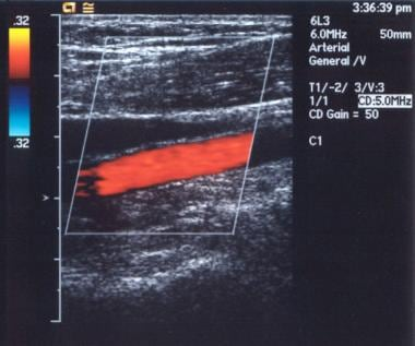 Color Doppler sonogram of the popliteal artery. Th