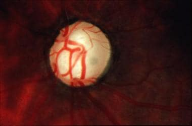 Cupping of the optic disc in late glaucoma.
