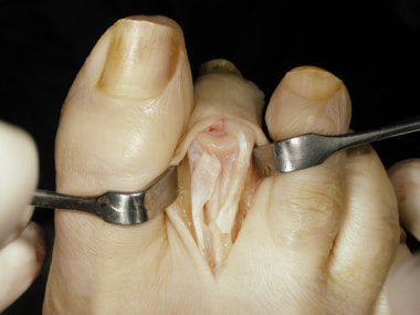 Claw toe. Z-lengthened extensor tendon with end of