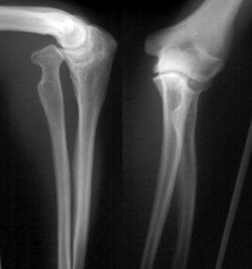 Congenital radial head dislocation.