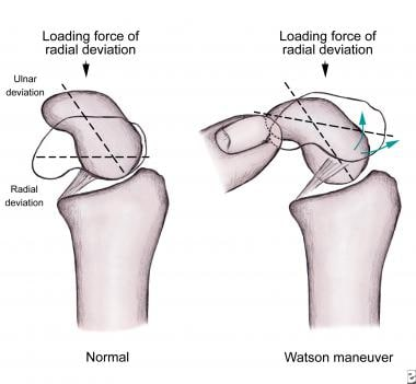 (Click Image to enlarge.) Watson scaphoid shift te