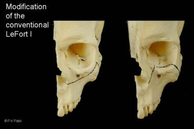 Variation of midfacial osteotomies to correct diff
