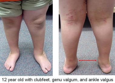 Patients may have valgus at more than just the hin