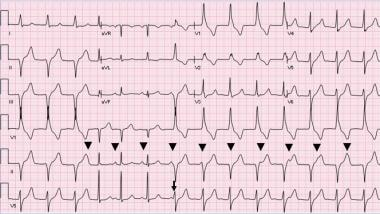 AIVR and sinus rhythm: AIVR starts and terminates