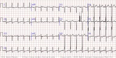 This electrocardiogram (ECG) shows evidence of sev