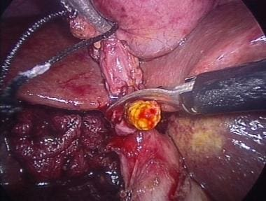 Stone being extracted from cystic duct through sma