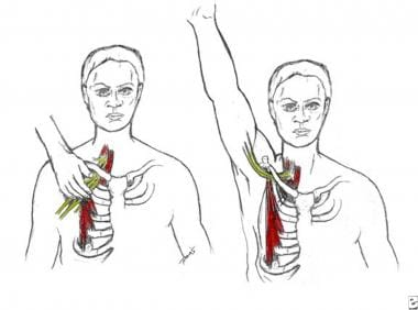 Pectoral focal (left) and regional (right) stress