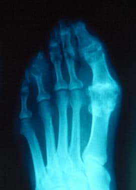 Gout. Plain radiograph showing typical changes of