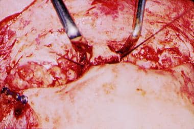 The sutures seen in this figure each are attached