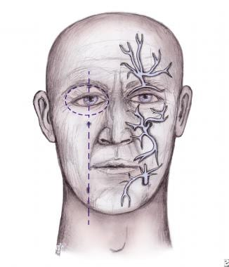 Facial wound healing nerve damage