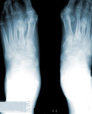 Radiograph of the feet. This image depicts a stres