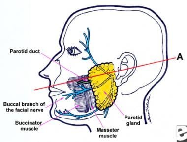 Anatomy of the parotid region. Line A connecting t