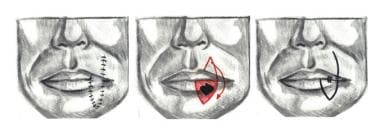 The Abbe lip switch flap. Typically, the flap is h