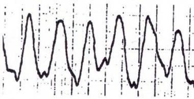 Sinusoidal wave.