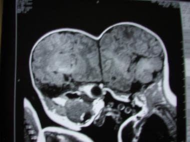 MRI或CT可以显示大脑结构,而a