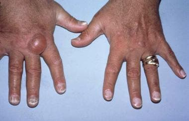 Hands of a transfusion-dependent patient on long-t