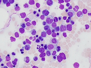 Numerous dysplastic erythroid cells are seen inclu