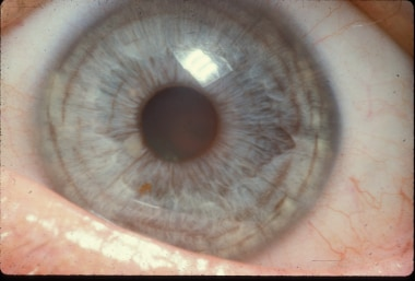 Pigment accumulation on anterior surface of iris.