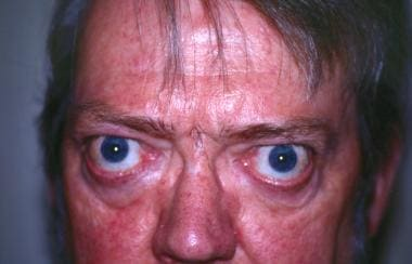 Long-standing thyroid ophthalmopathy with typical