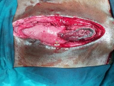 Fistula tract being excised.