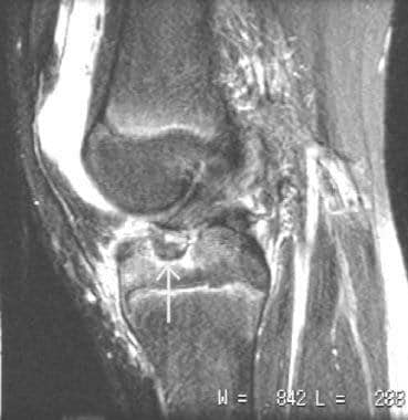ACL insufficiency in a pediatric patient secondary