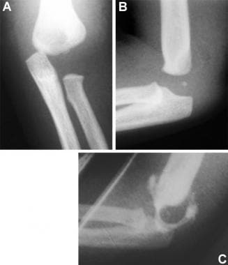 Transphyseal fracture. Anteroposterior (A) and lat