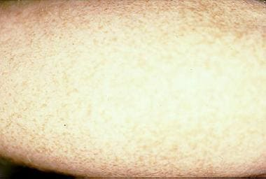 Ephelides (ie, freckles) on the forearm of a 26-ye