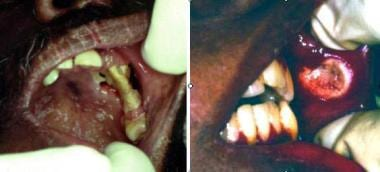 Cryptococcosis. Left image shows solitary, destruc