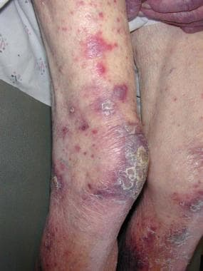 A patient with typical plum-colored lesions seen i
