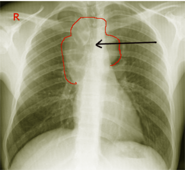 Chest radiograph shows large mediastinal seminoma