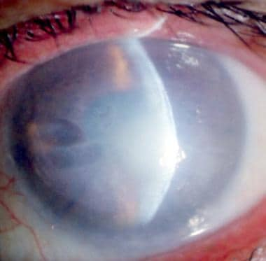 The left eye of a 75-year-old man showing fully de