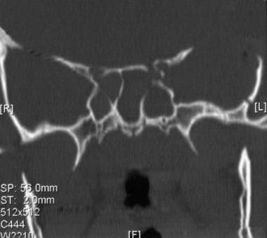 Apex Orbital Fracture Workup Imaging Studies Other Tests