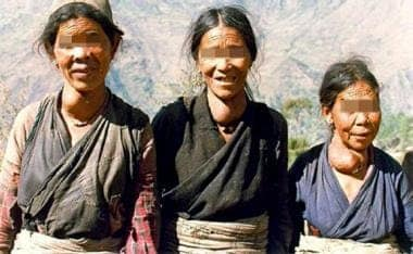 Typical endemic goiters in 3 women from the Himala