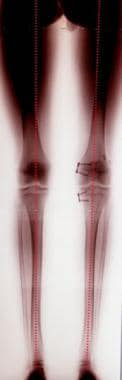 A standing AP radiograph of the legs confirms the