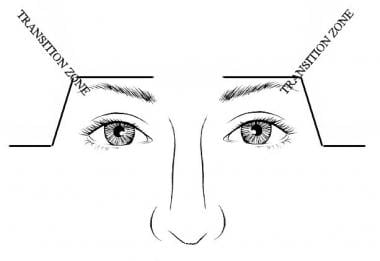 Selective elevation of lateral brow can be accompl