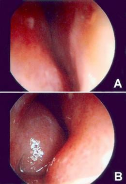 (A) Endoscopic view of left nares showing caudal s