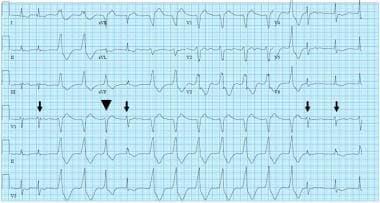 AIVR in atrial fibrillation: AIVR starts and termi