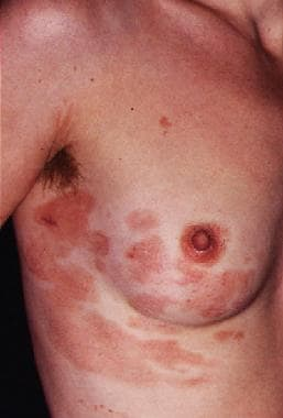 Early patch-stage cutaneous T-cell lymphoma.