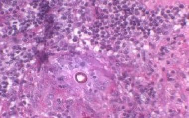 Periodic acid-Schiff stain of Coccidioides immitis