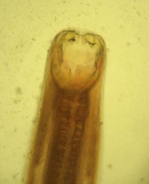 Adult Ancylostoma duodenale worm. Anterior end wit