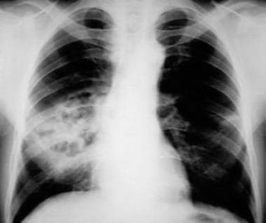 Pneumococcal pneumonia complicated by lung necrosi